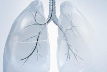 支气管镜检查